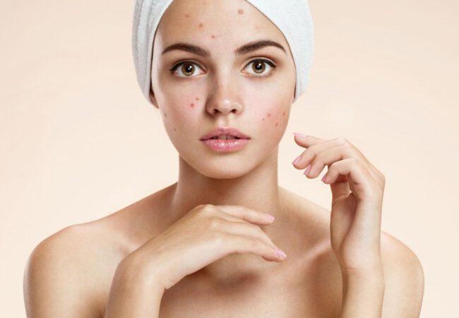 Čo používať a ako sa starať o pokožku napadnutú akné?